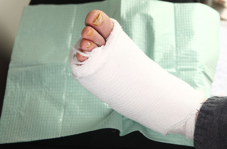 foot surgery, ankle surgery
