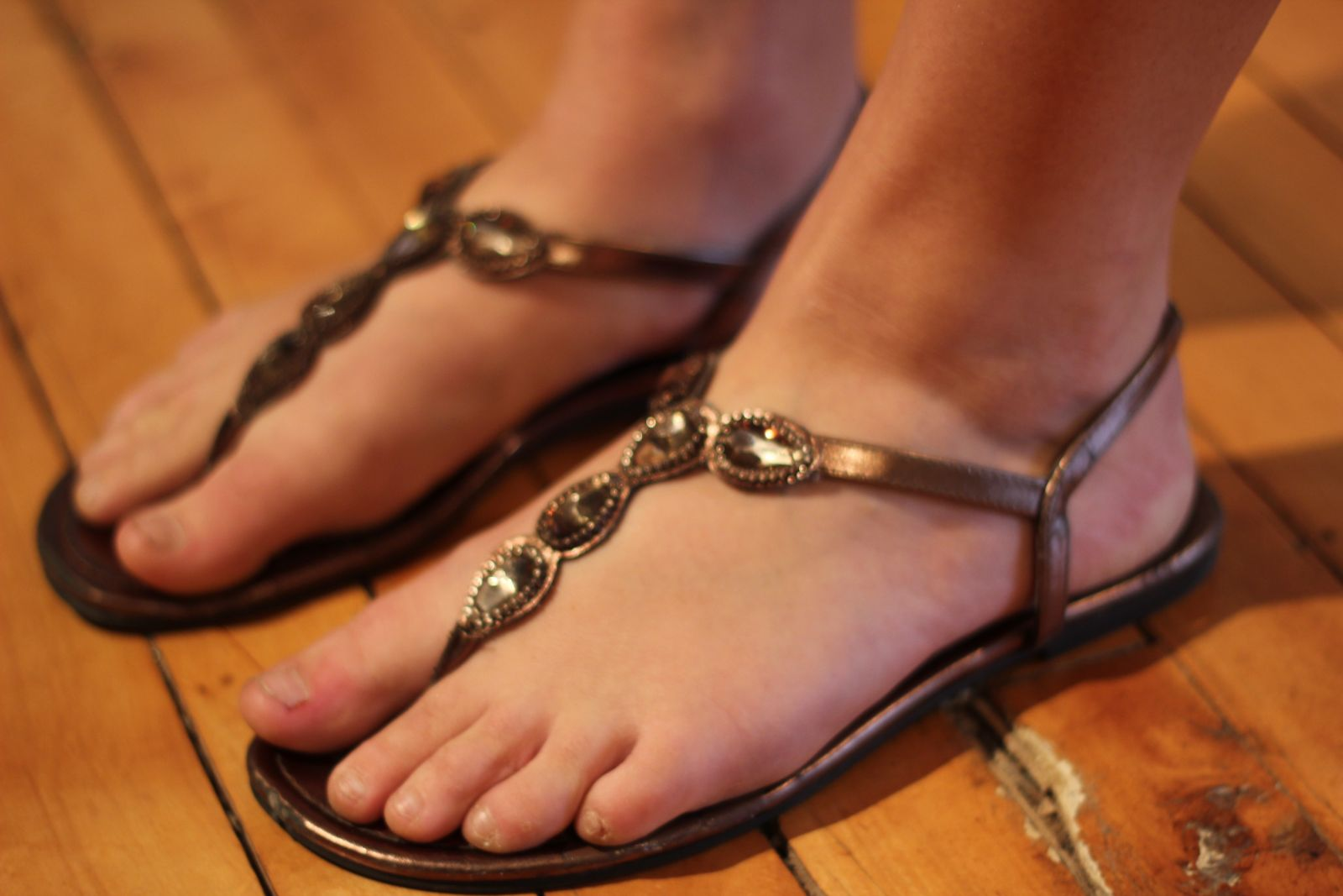 Wearing Sandals with Bunions